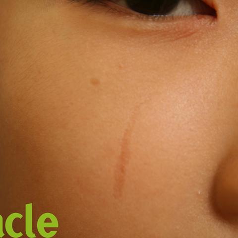 引っかき傷の症例