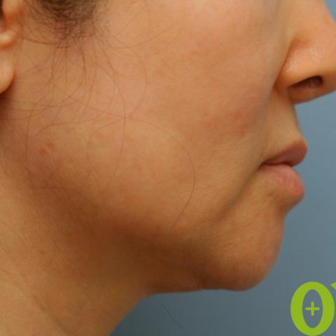 ウルセラ頬の症例