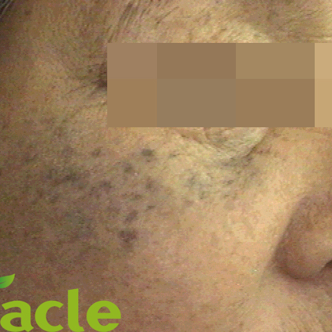 太田母斑の症例