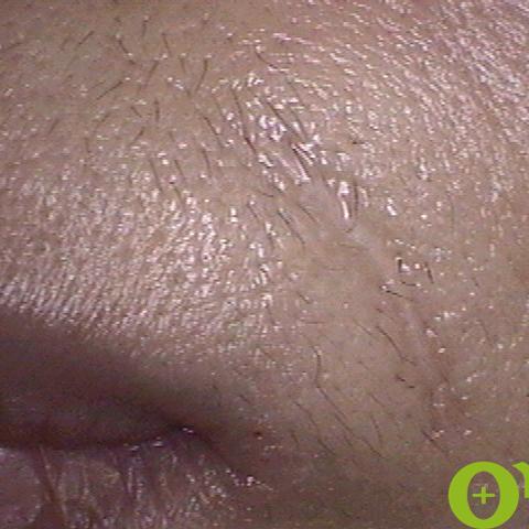 傷跡の症例
