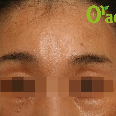 眉間-しわの症例(2ページ目)