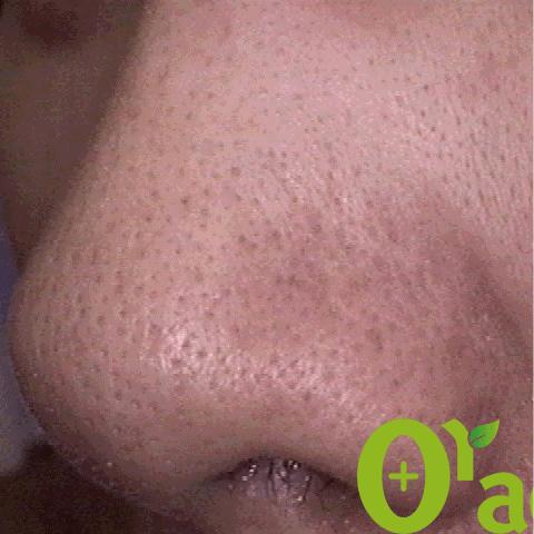 鼻毛穴の症例(4ページ目)