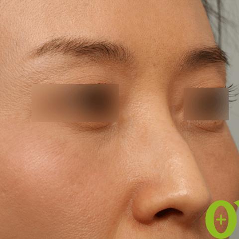 鼻フィラーの症例(2ページ目)