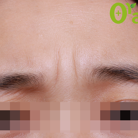 眉間-しわの症例(3ページ目)