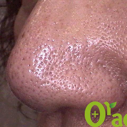 鼻毛穴の症例(3ページ目)