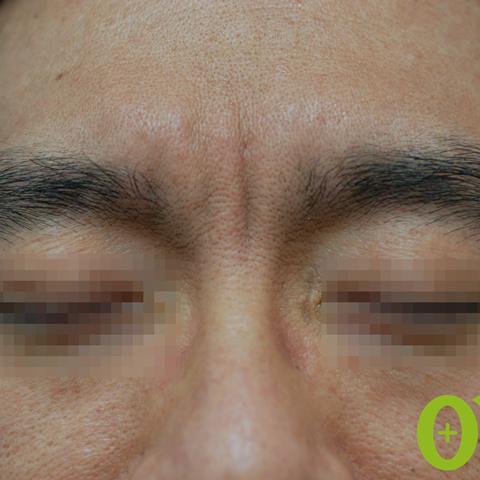 眉間-しわの症例