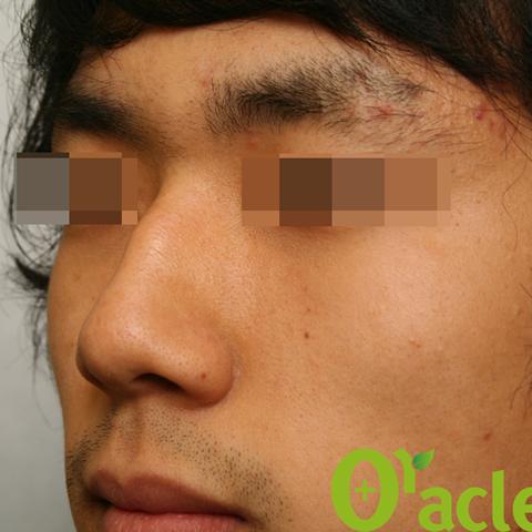 鼻フィラーの症例(5ページ目)