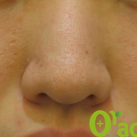 鼻毛穴の症例