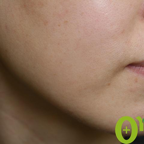 頬-毛穴の症例(2ページ目)