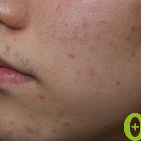 頬-毛穴の症例
