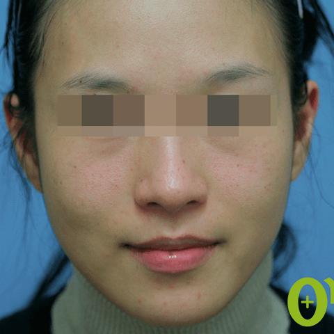 頬-フィラーの症例