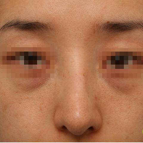 目の下-フィラーの症例