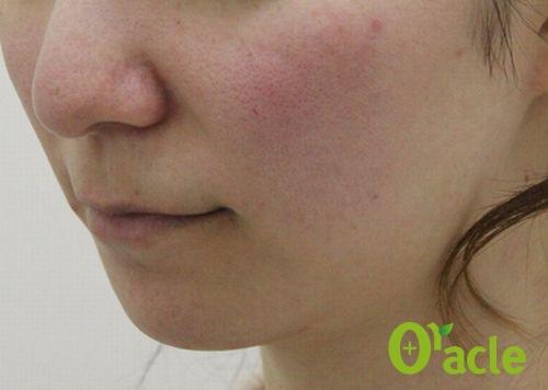 美肌の症例-フラクショナルシークレット