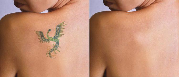tatooイメージ