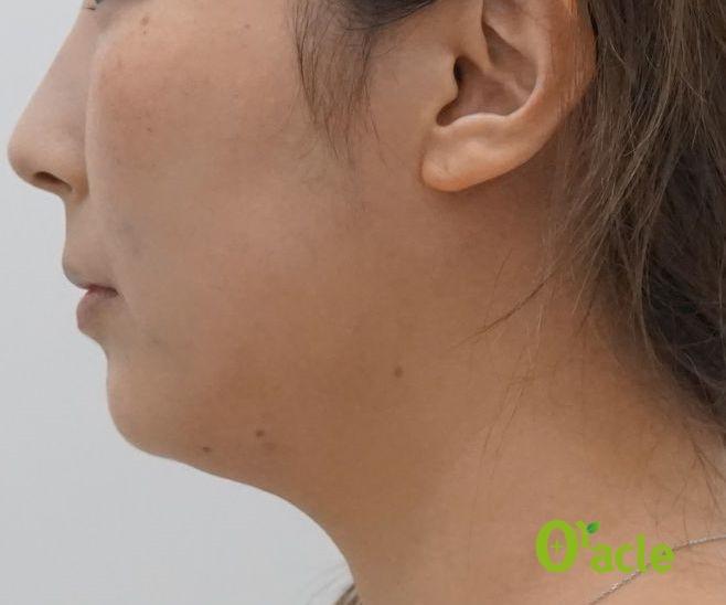 美肌の症例-IPL